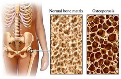 20100917135556-osteoporosis-web.jpg