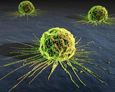 20111129145750-cancer-cells.jpg