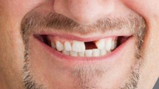 20130310164404-dientes.jpg