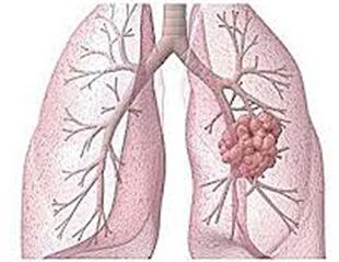 20130608131520-pulmon.jpg
