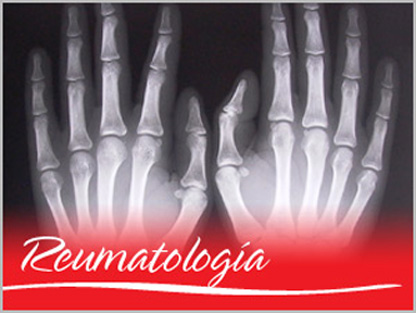 20130706131324-12-medicina-reumatologia-do.jpg