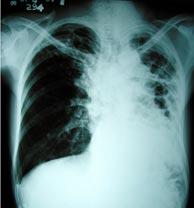 20110324115316-tuberculosis.jpg