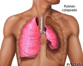 20110325213752-pulmon.jpg