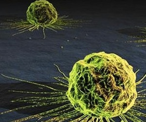 20120108201451-cancer-celula-580x3261.jpg