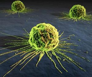 20120912120805-cancer.jpg