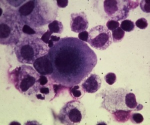 20130819141652-cancer-cells1.jpeg