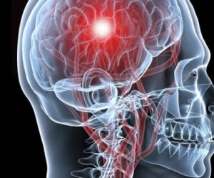 20160704133418-cerebro-isquemia-300x250.jpg